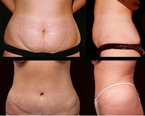 Abdominoplasty is a cosmetic operation that is...