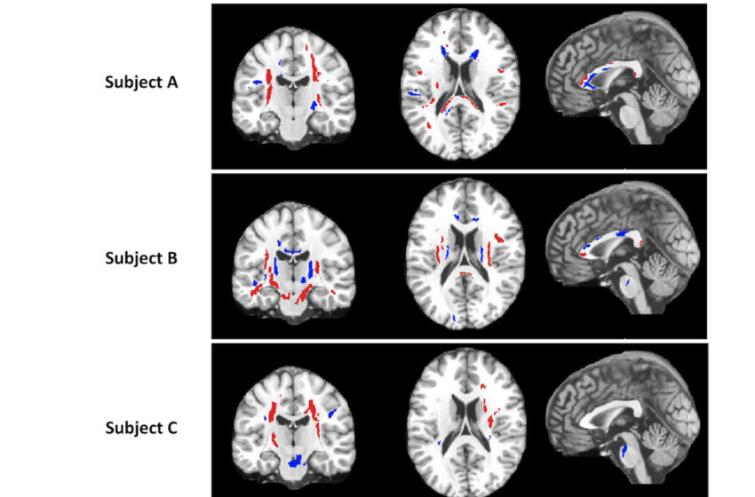 RSNA 2012: Some Gain in Detecting Pain to the Brain