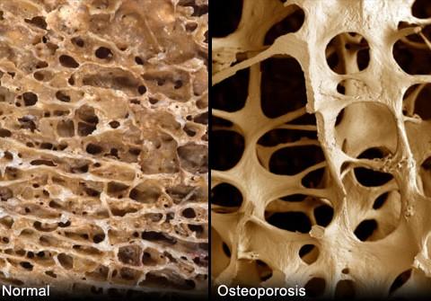 Osteoporosis - Marielaina Perrone DDS
