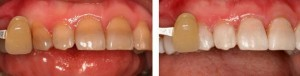 Teeth Whitening Tetracycline staining
