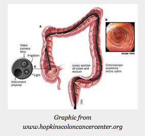 How Good is Screening Colonoscopy for Average-risk Adults?