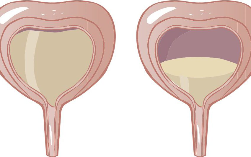 Botox Approved for Overactive Bladder Treatment