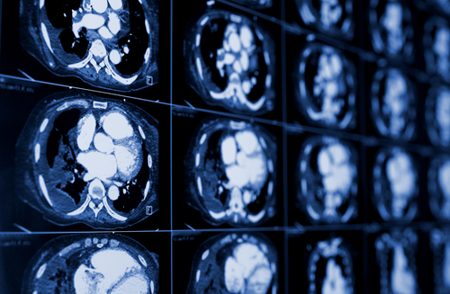 Possible Decline in Pediatric CT Use