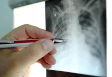 radiology healthcare IT