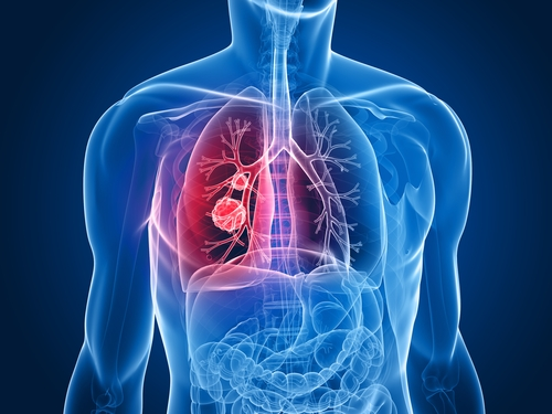 Lung Cancer Overview – Part 1 of 5