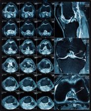 medical imaging and meaningful use