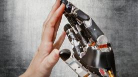 touch-sensitive artificial limb