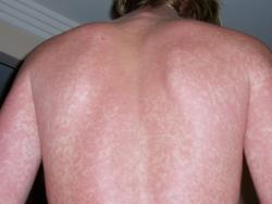 rash caused by drug