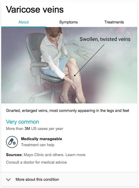 google varicose veins
