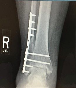 ITN NEWS Orthopedic_Surgery_repair_of_Broken_fibula_with_permission_of_patient_MF_0