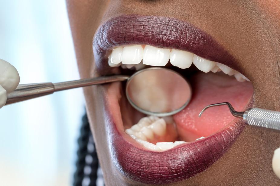 Women Must Regulate Hormone Levels to Stop Gum Disease