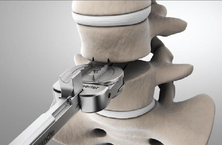 5 Reasons Why Doctors Are Considering Artificial Disc Replacement Over Cervical Fusions