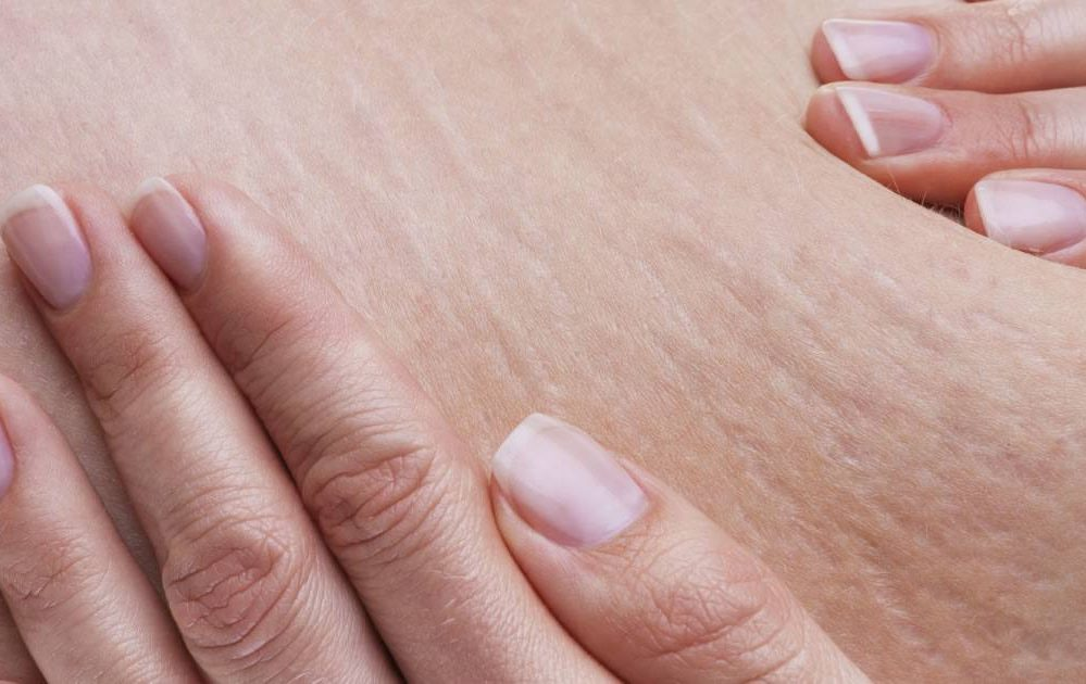 4 Symptoms of Collagen Deficiency After 50