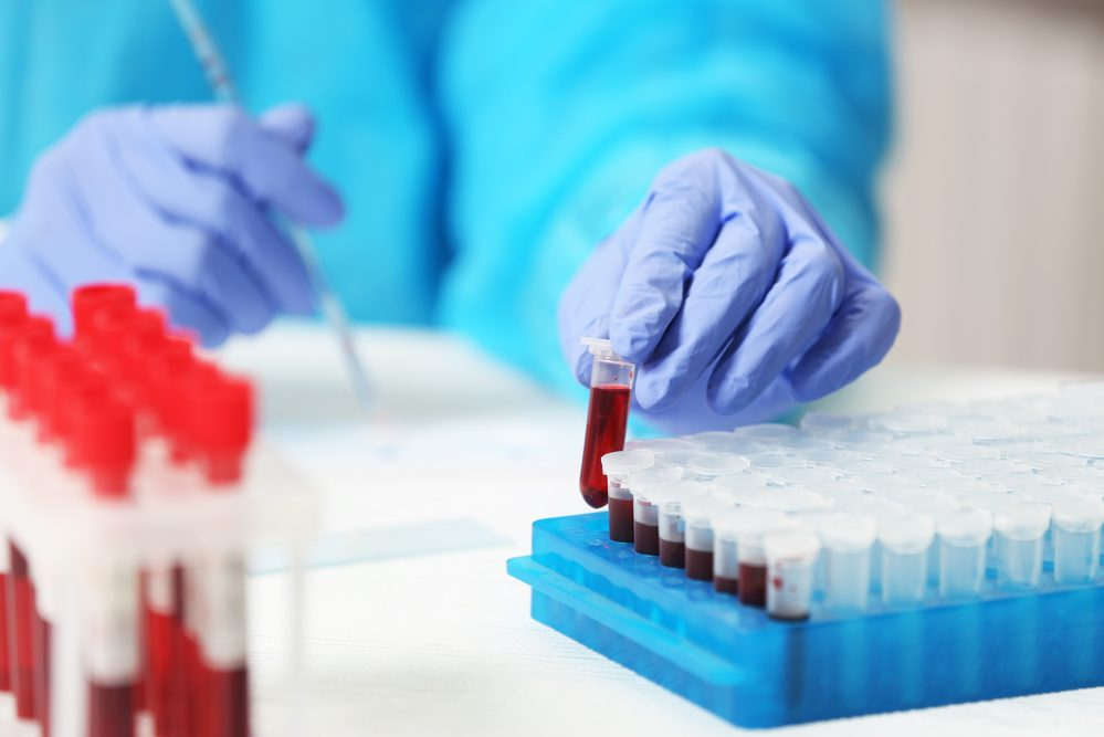 Healthcare Is Improving With These New Powerful Blood Tests
