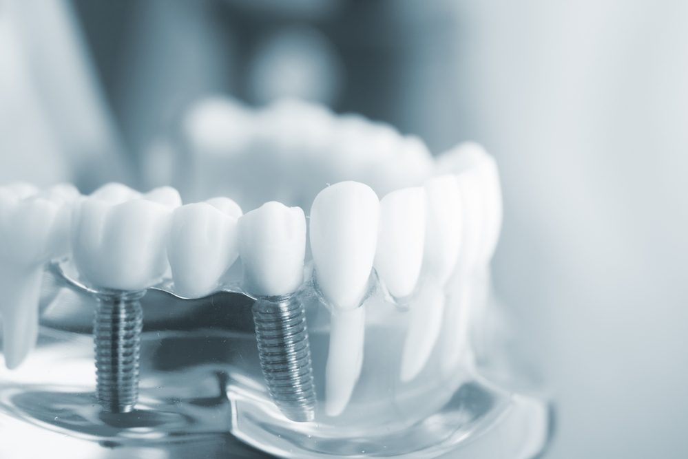 Pros and Cons of Dental Implant You Should Know