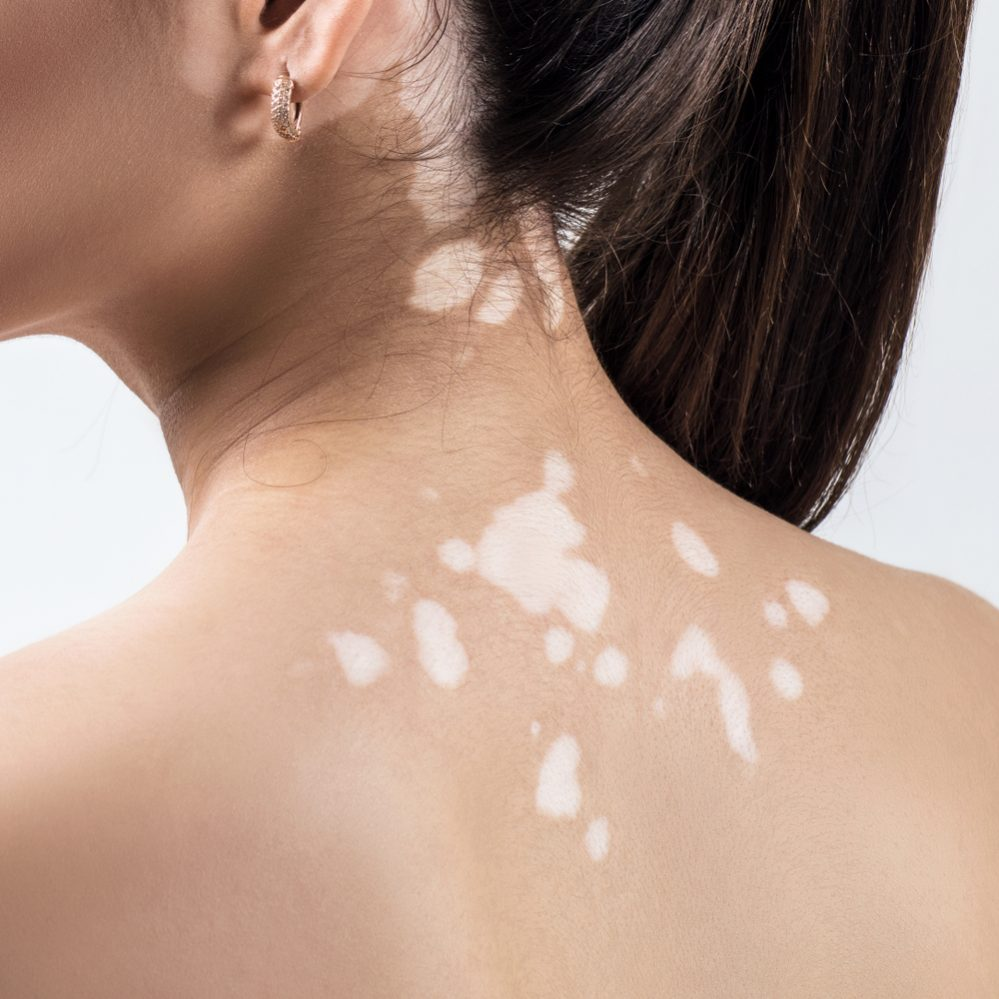 Vitiligo: Why it Happens to You, and How to Treat it?