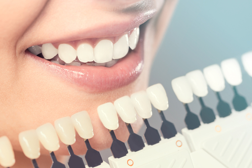 Cosmetic Dentistry In 2018: What's New And What To Expect