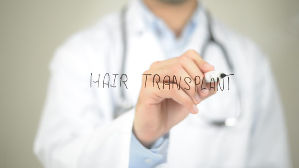 What to Expect from a hair transplant procedure – steps, recovery and more