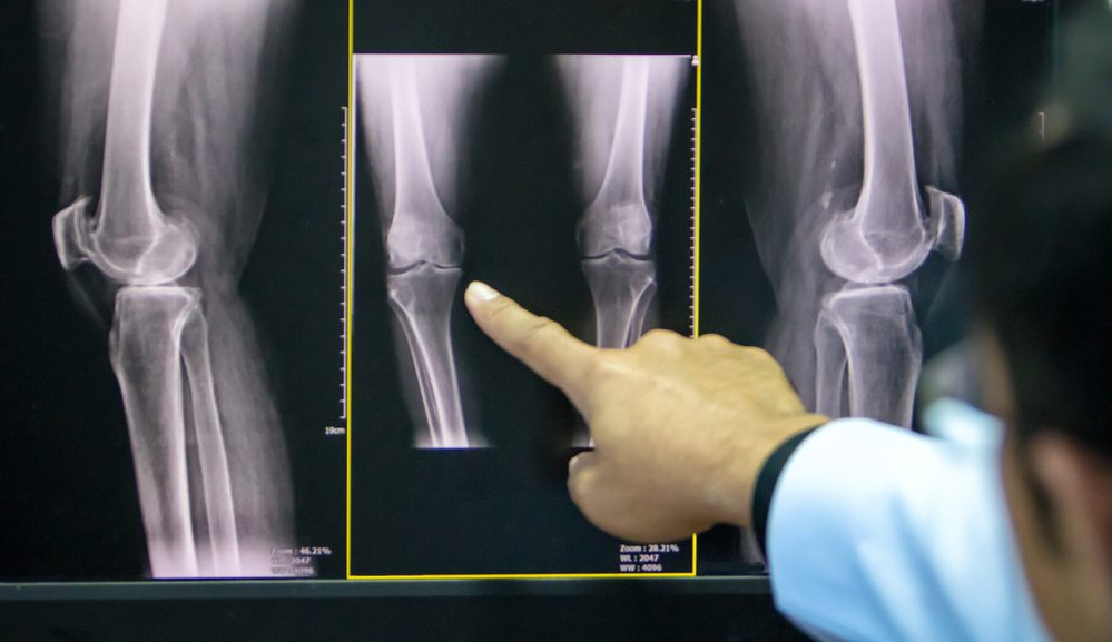 Baby Boomer's Guide to Dealing with Knee Problems