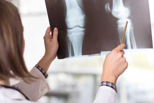 How To Take Care Of Your Bone Health In Your Forties