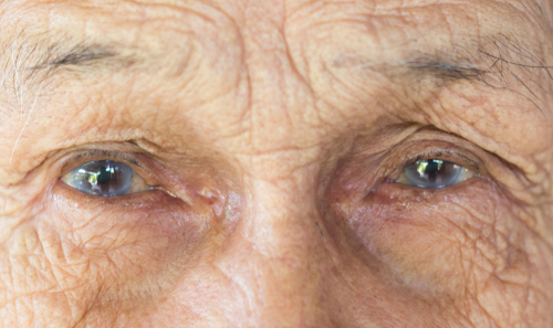 Cataract Procedures: Which One Is Best For You?