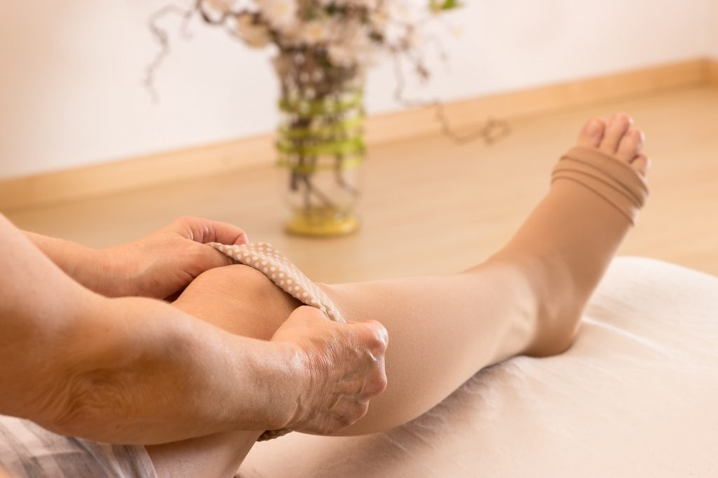 8 Home Remedies For Treating Varicose Veins Health Works Collective