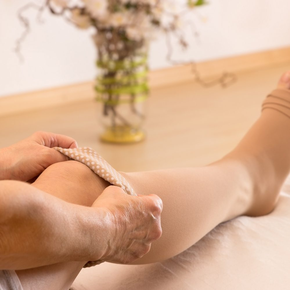 8 Home Remedies for Treating Varicose Veins
