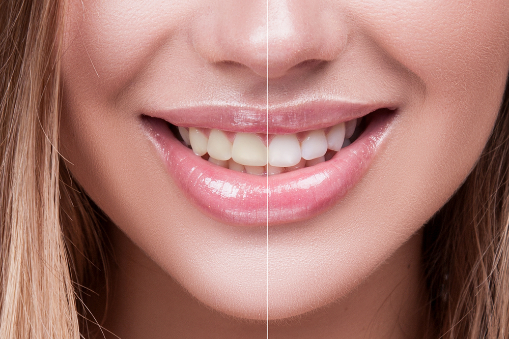 5 Reasons To Whiten Your Teeth At The Dentist In 2020