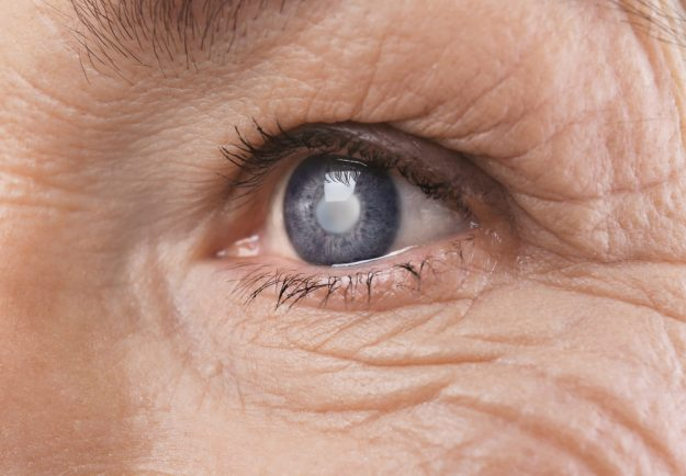 Your Helpful Guide To Recovering After Cataract Surgery