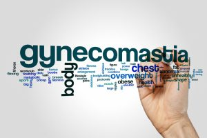 Myths Surrounding Gynecomastia and Whether They are True or Not