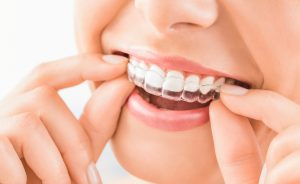The Technologies That Are Re-Shaping Orthodontics