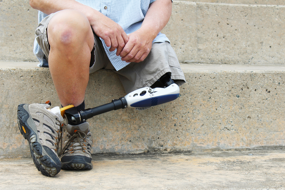 What You Need To Know About Losing A Limb