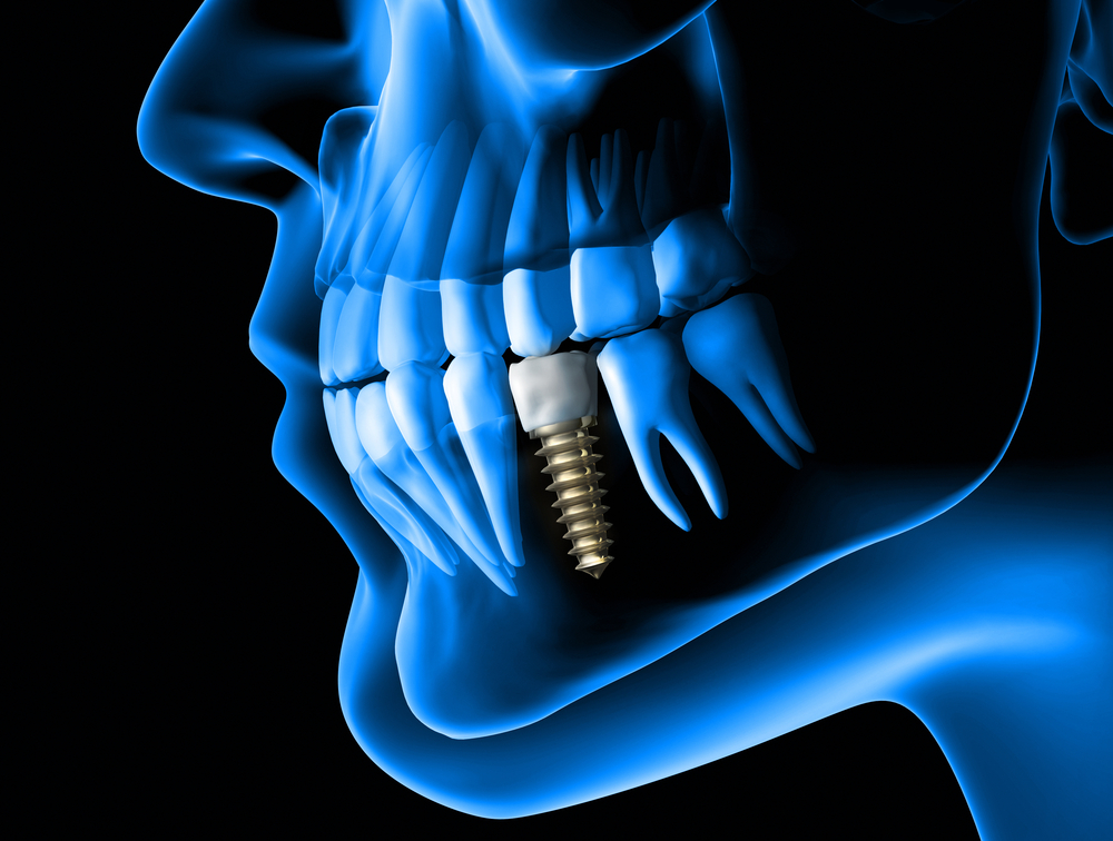 dental implant myths that must go away