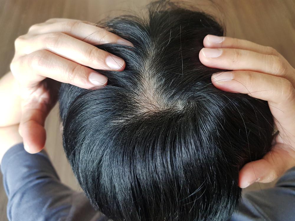 treat natural hair loss