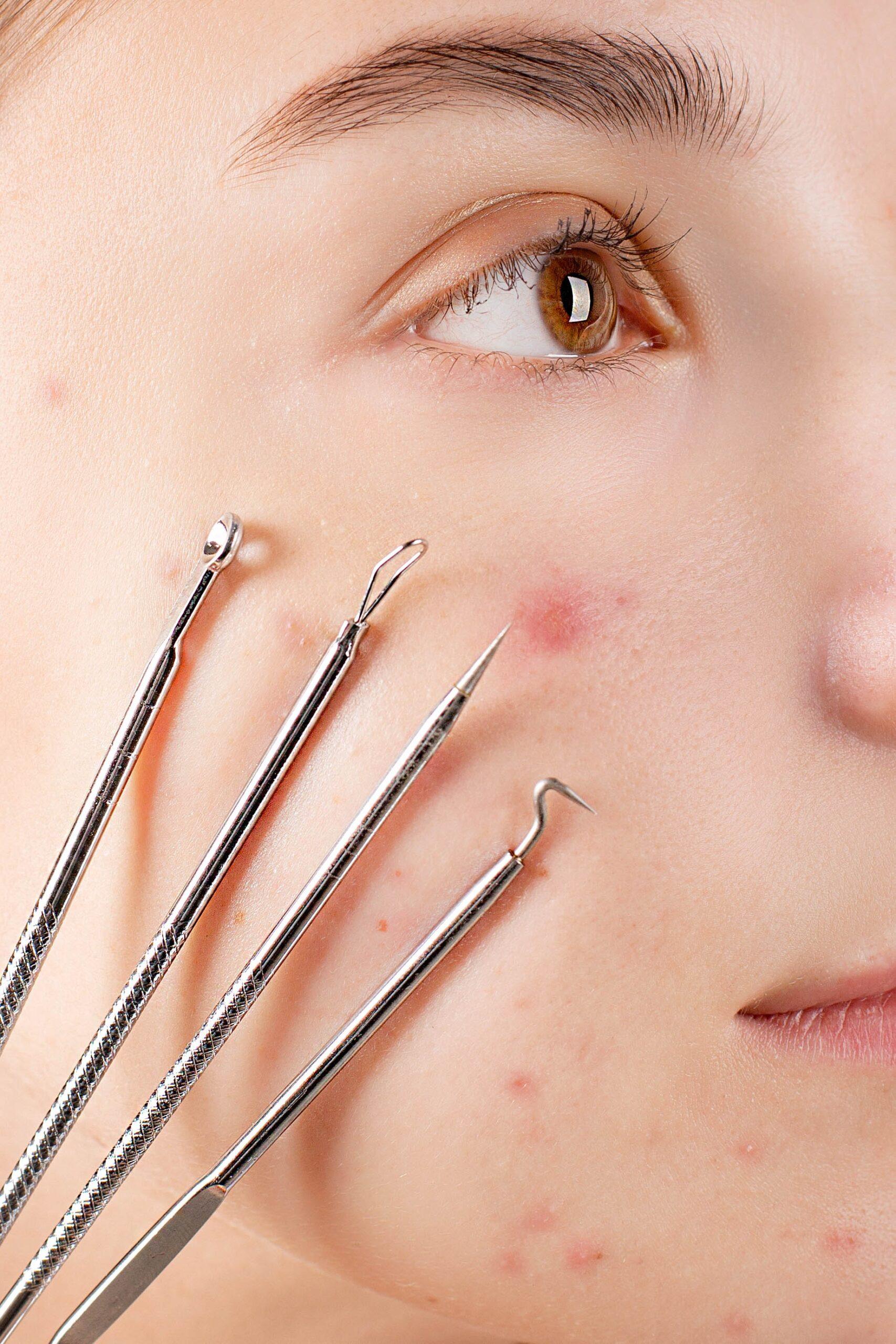 Common Acne Myths