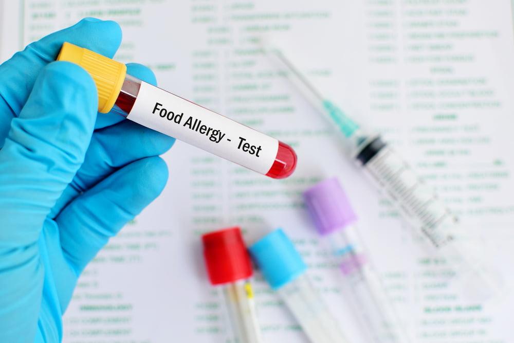food allergy test